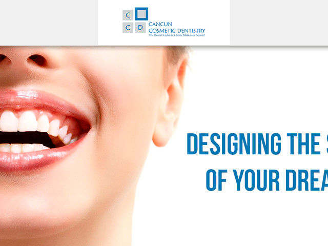 Makeover testimonial for Cancun Cosmetic Dentistry! (video)